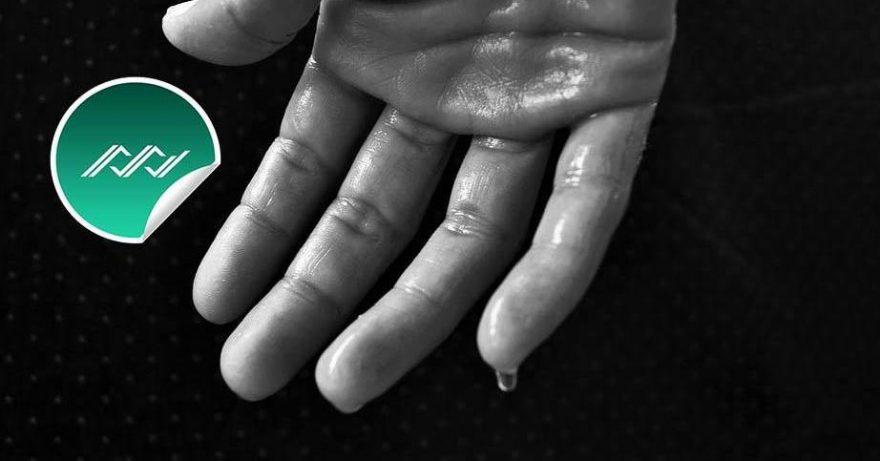 Prekomerno znojenje može da zagorča život. Botoks protiv znojenja.